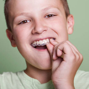 Mouthguard for braces in Capmbell, CA.